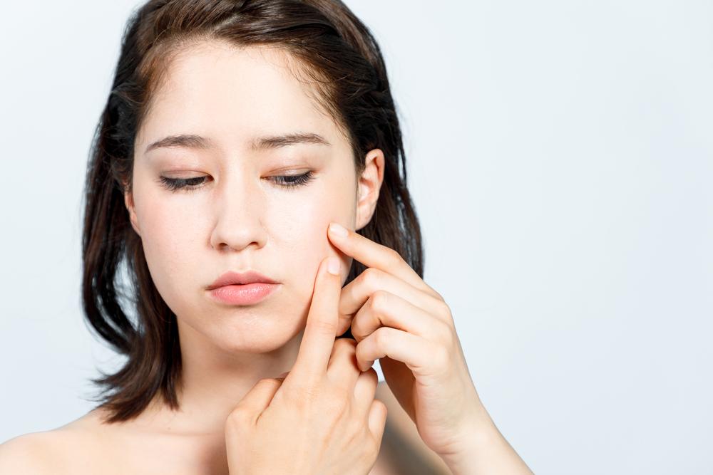 huonot hiukset likaiset tavat aiheuttavat akneja